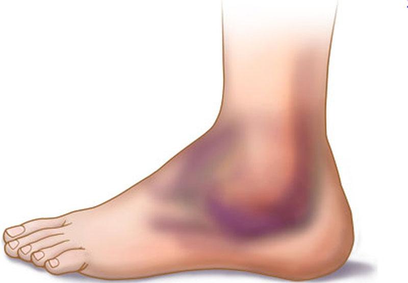 Triệu chứng của bong gân cổ chân