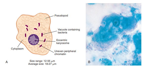A, Entamoeba coli trophozoite. B, Entamoeba coli trophozoite. (B from Forbes BA, Sahm DF, Weissfeld AS: Bailey & Scott's diagnostic microbiology, ed 12, St Louis, 2007, Mosby.)
