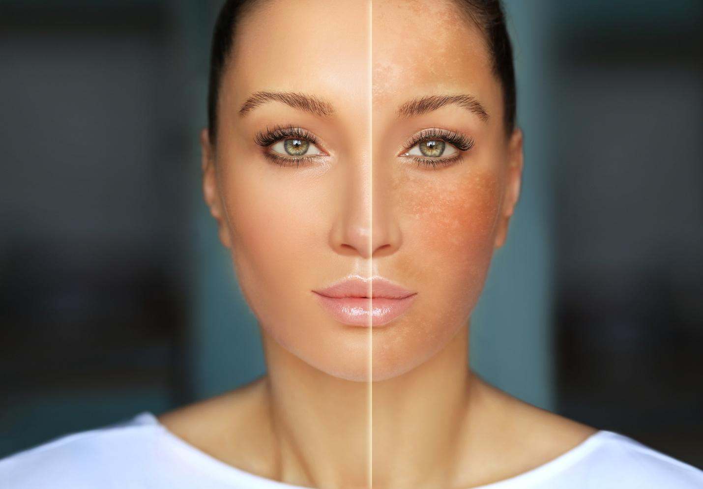 A woman who has had laser skin resurfacing on one side of her face.