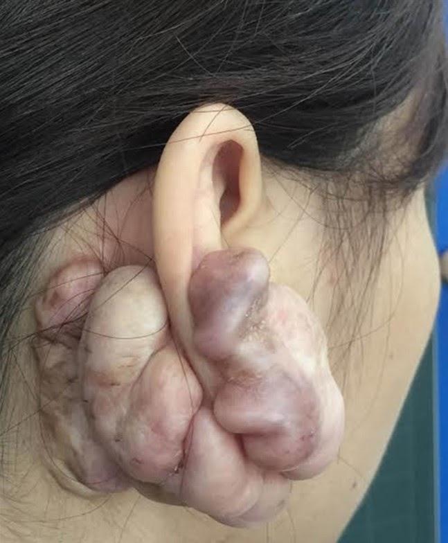 Bệnh lý Sẹo lồi ở dái tai