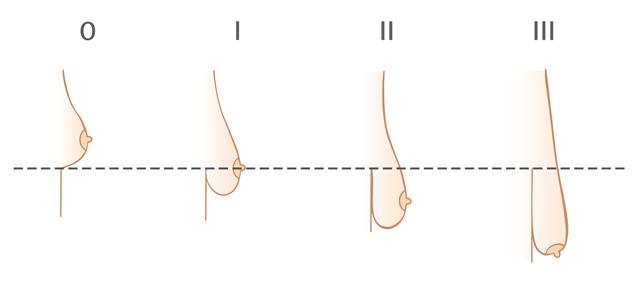 Степени мастоптоза (опущения молочных желез) по Regnault