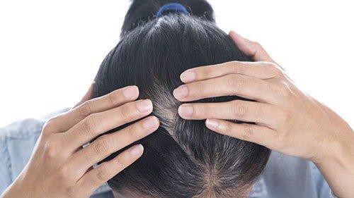 đâu là cách chữa tóc bạc sớm hiệu quả nhất