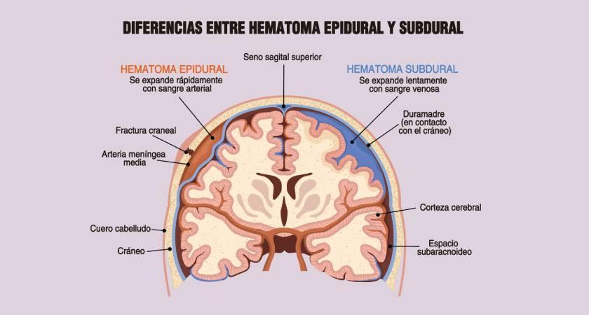 Hematoma subdural: qué es, causas, diagnóstico y tratamiento