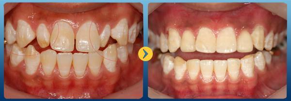 3 Cách chỉnh nha răng không cần niềng mới nhất 2018 1