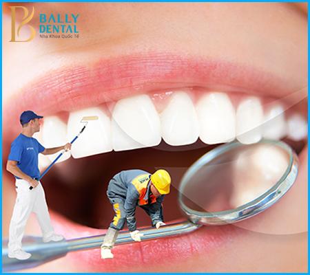 Quy trình lấy cao răng bằng máy siêu âm qua 5 bước an toàn