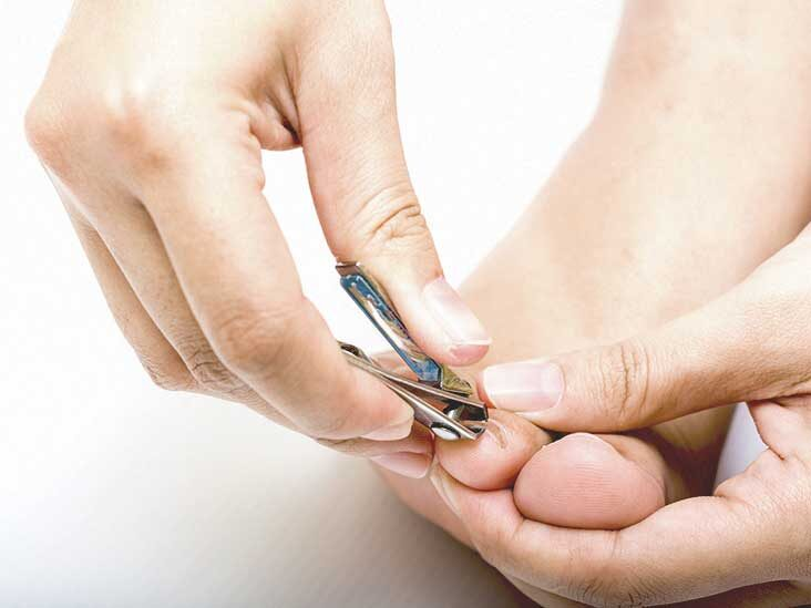 Regular Nail grooming prevents fungal infections