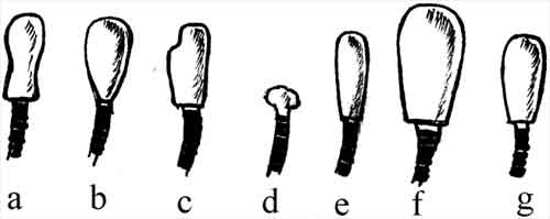 A schematic picture of different sperm head shapes that can be seen in stained smears
