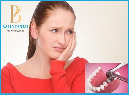 Nhổ răng khôn đau mấy ngày, có cách nào rút ngắn thời gian không? 1