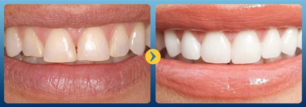 Tẩy trắng răng bị ê buốt có nguy hiểm không? 1