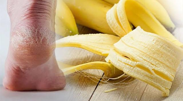 """การรักษาด้วย """"เปลือกกล้วยหอม"""" นับเป็นการบำรุงเท้า"""